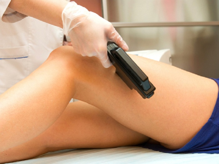 Varicose Veins can be effectively treated and Removed