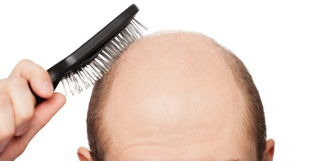 3 Basic Points: How Hair Transplant Solves Baldness