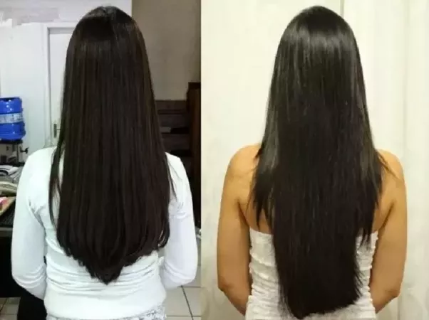 Bringing Your Hair Growth To Normal Is Not As Tough As You Think of It — Here Is Why?