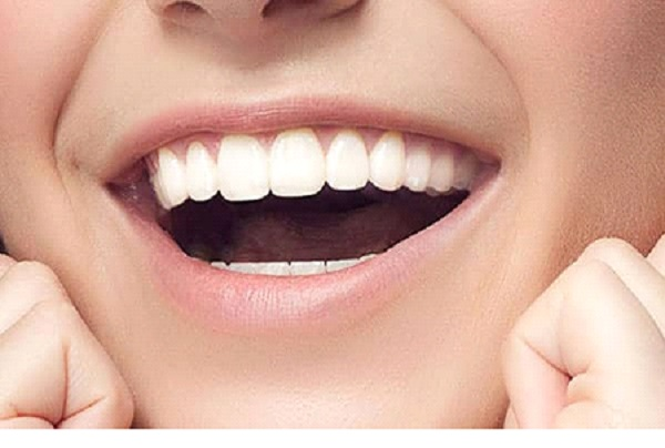 Maintain your healthy happy Smile with Veneers