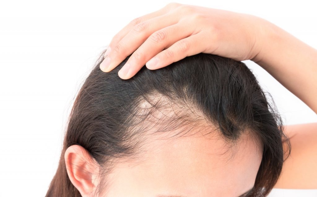 Hair thinning in women – A common yet difficult problem