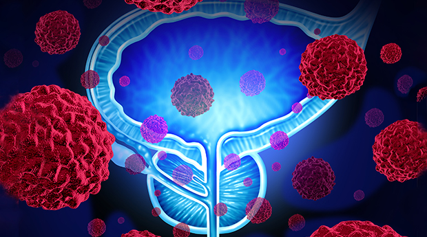 Best and Most Common Treatment Options for Prostate Cancer