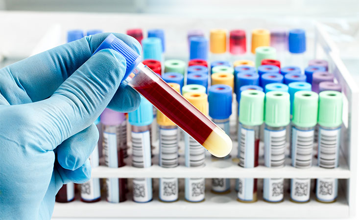 Effective Techniques To Phlebotomy: The Procedure You Should Follow