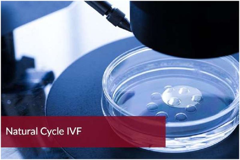 Prepare IVF: Good organisation in advance
