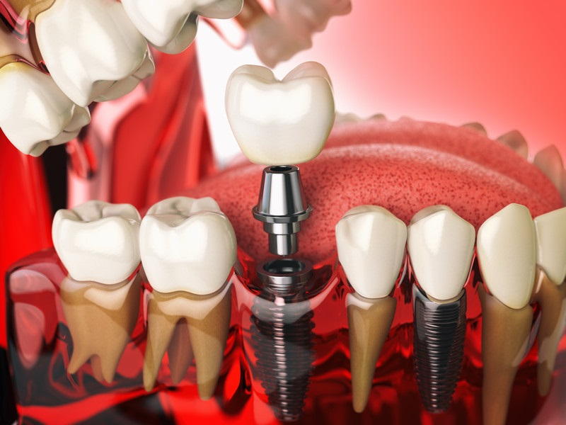 Restoring the Confidence in your Smile with Dental Implants