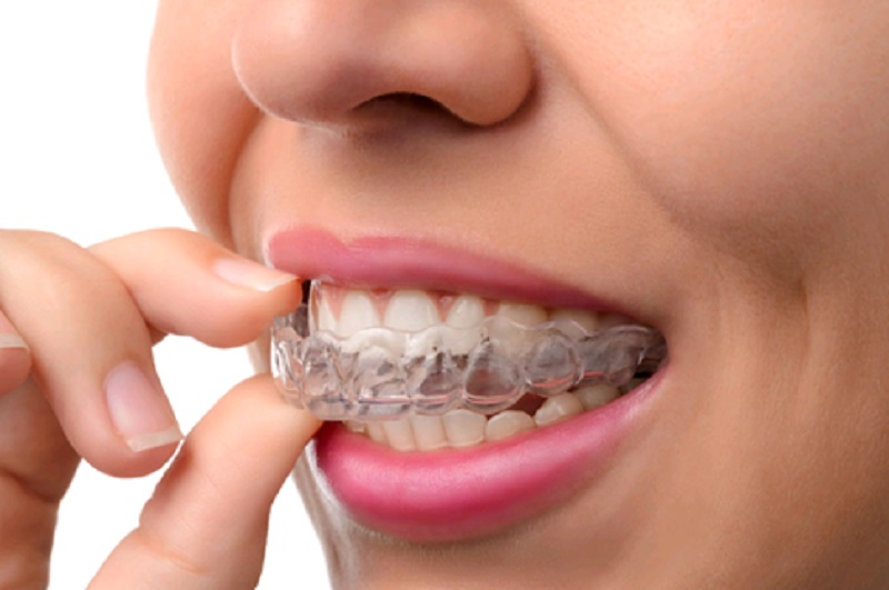 Why Choose Invisible Braces Over Metal Braces?