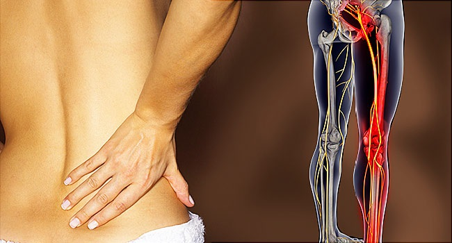 Brief Understanding of Sciatica and the Best Treatment for it