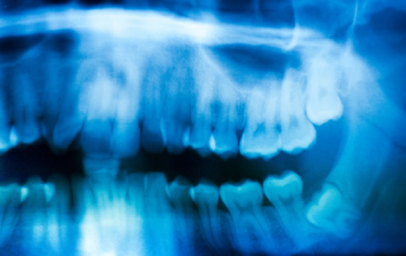 Wisdom Teeth Removal – Why Prevention Is Better Than Waiting for the Problem to Occur