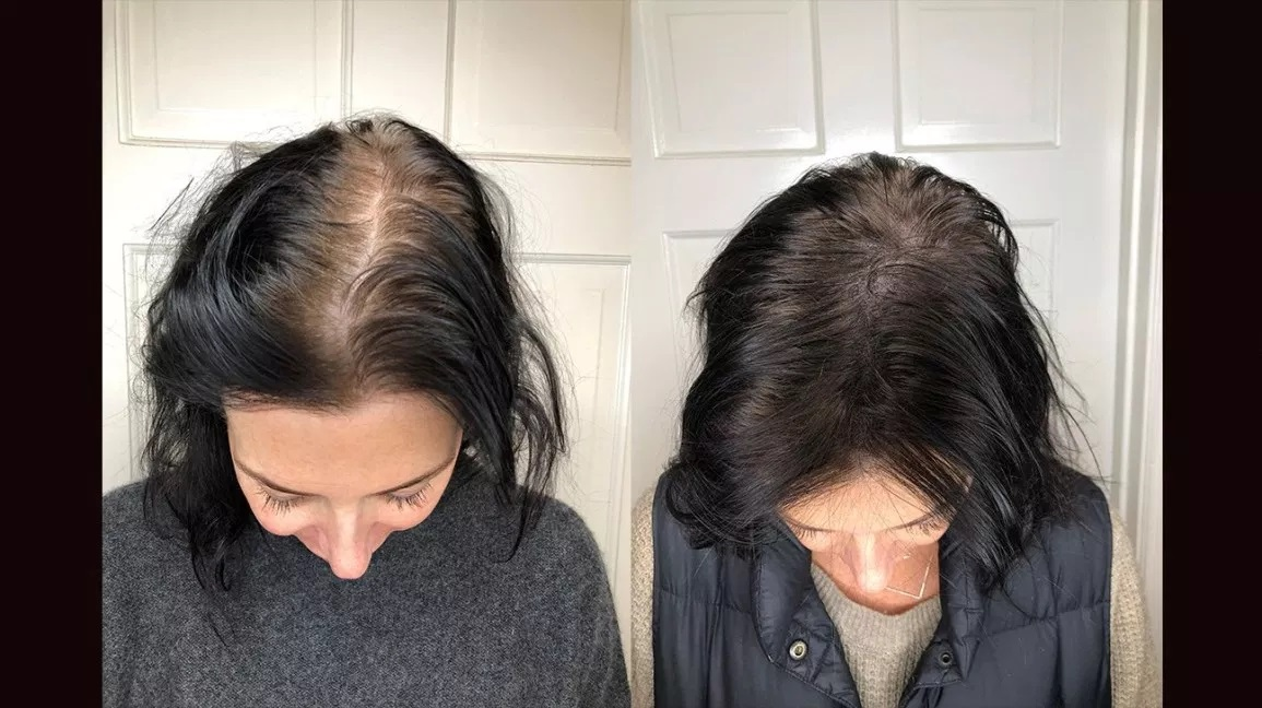 How to utilize minoxidil scalp prep work?