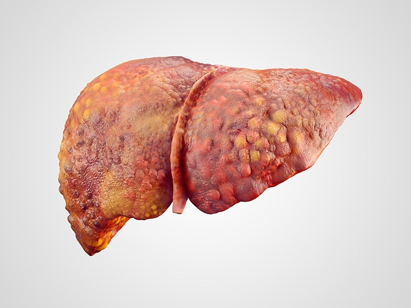 The Causes Of Cirrhosis in the Liver?
