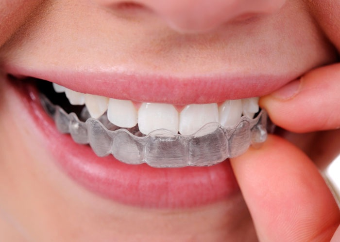 Discover The Invisalign Arlington Solution To A Healthier Smile And Healthier Teeth
