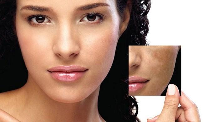Causes of pigmentation