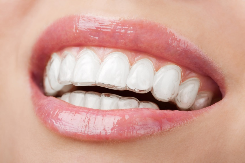 Invisalign Dental Bracings