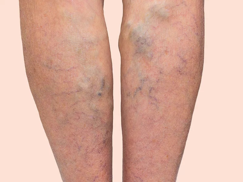 All about varicose veins