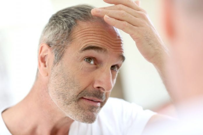 How Effective Is Procerin For Hair Loss?