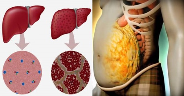 5 Signs Your Liver is Stressed and Needs a Detox