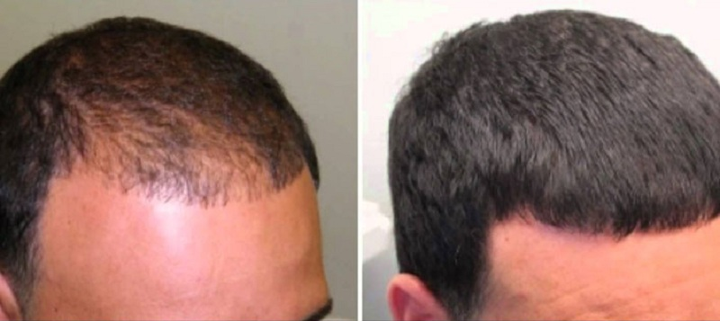 Effects after use of progaine shampoo