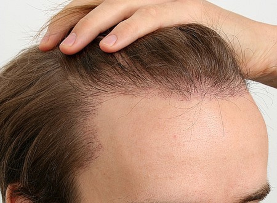 QUЕЅTIОNЅ TО AЅK BEFORE HAVING A HAIR TRANSPLANT