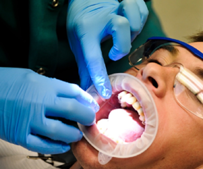 Why to Have Wisdom Teeth Removal in Australia?