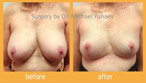 Reduce Your Breasts And Return Time On Your Looks