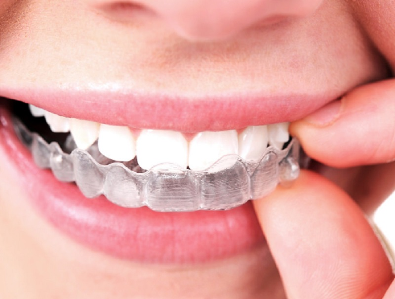 Are Invisible Braces For Me?