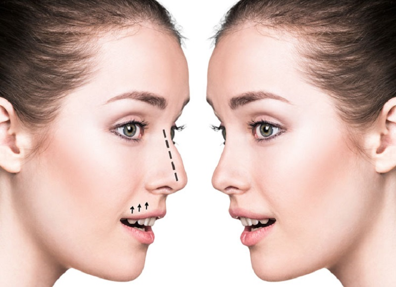 All You Need to Know About Nose Correction Job