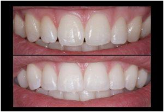 Enhance Your Smile with Composite Bonding – Here are 5 Benefits