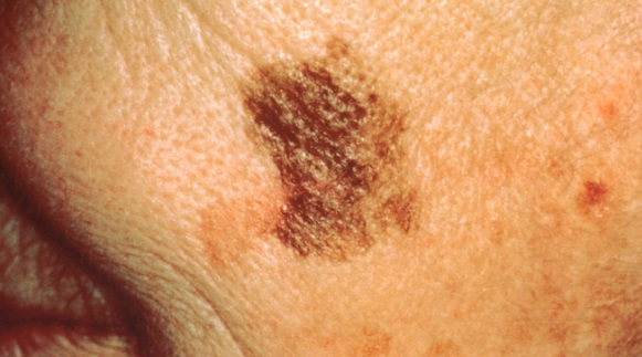 Skin cancer screening get your skin examined