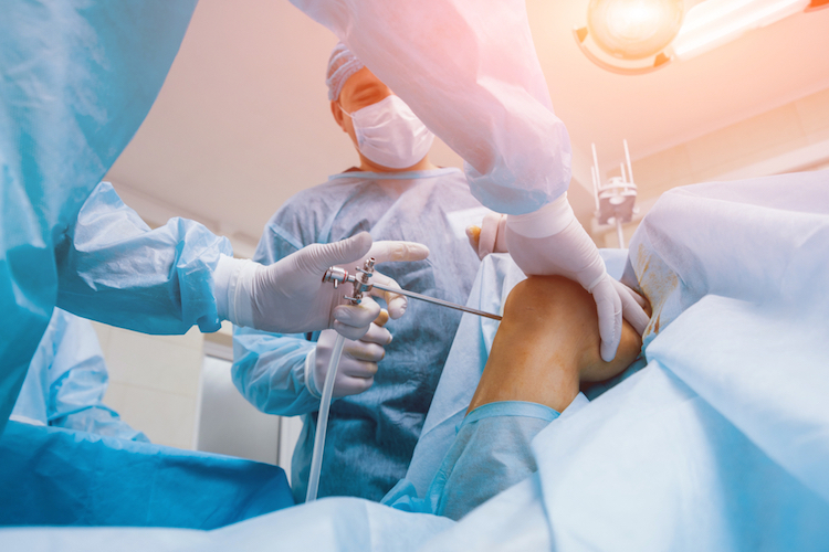 Knee arthroscopy- Meaning, complications, and role of expert witnesses